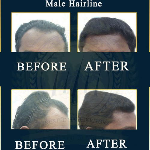 %Professional Hair Loss Treatment In Malaysia %Hair Transplant Malaysia